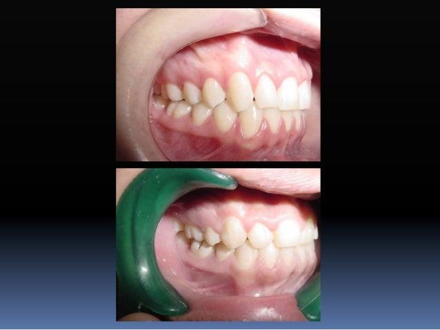Prescripción de Roth  Los dientes tienden a recidivar al quitar aparatos.  Contrainclinación, contrarotación, contratorq...