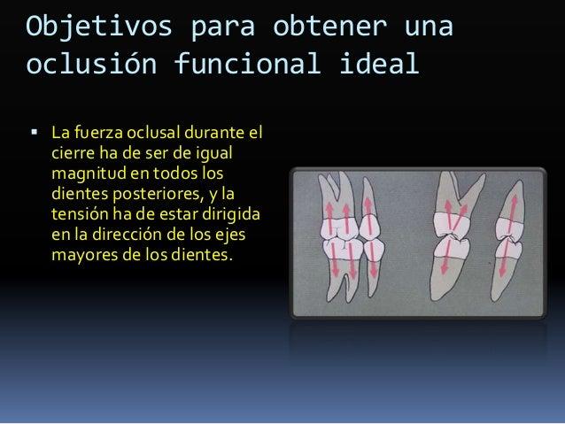 Prescripción maxilar  Incisivos con torque de 5° de más  Caninos con 2° de más de inclinación distal y 2° de rotación me...
