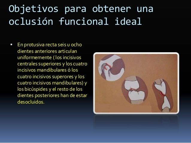 Diferencia en torque Maxilar Central Lateral Canino 1er. Premolar 2o. premolar 1er. molar 2o. molar ARO 7 3 -7 -7 -7 -9 -9...