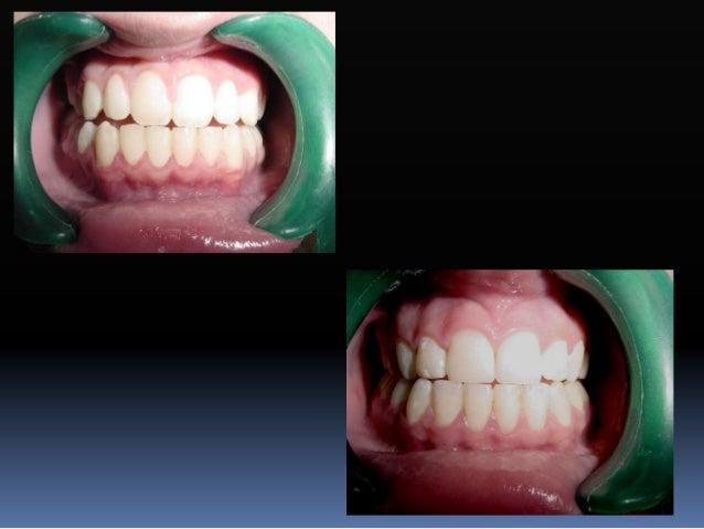 Diferencia en torque Mandíbula Central Lateral Canino 1er. premolar 2o. premolar 1er. molar 2o. molar ARO -1 -1 -11 -17 -2...