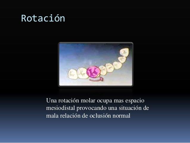 Rotación Una rotación molar ocupa mas espacio mesiodistal provocando una situación de mala relación de oclusión normal