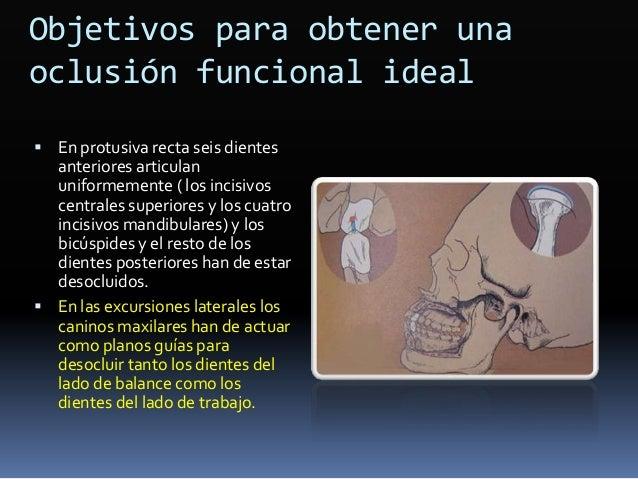 Diferencia en angulación Maxilar Central Lateral Canino 1er. premolar 2o. premolar 1er. molar 2o. molar ARO 5 9 11 2 2 5 5...