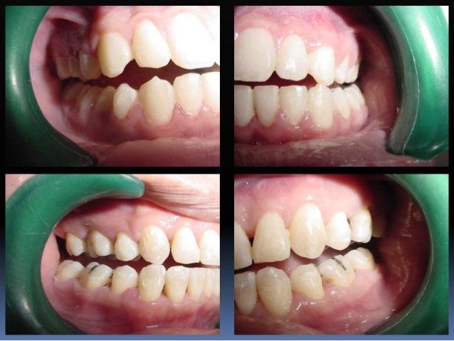 Diferencia en angulación Mandíbula Central Lateral Canino 1er. premolar 2o. premolar 1er. molar 2o. molar ARO 2 2 5 2 2 2 ...