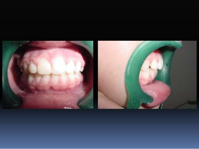 Tubos bucales  Segundos molares inferiores  Tubo sencillo convertible  Tubo sencillo