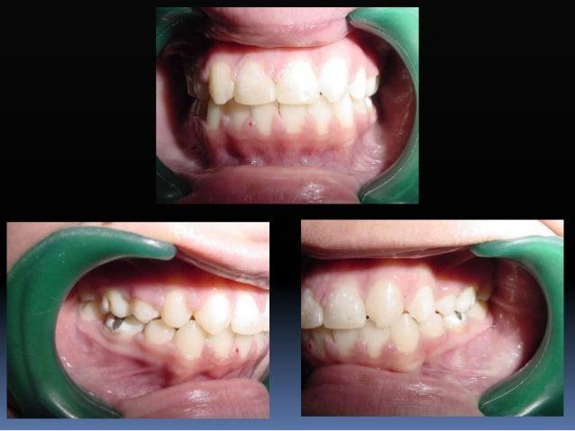 Arcos de alambre  La forma de arco maxilar y mandibular están diseñadas para coordinar la dentición superior e inferior