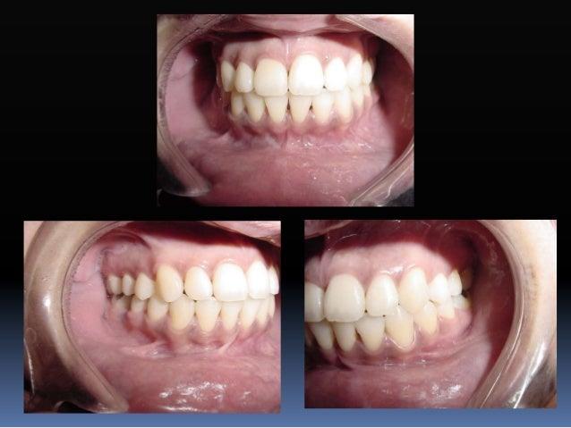 Colocación de brackets y tubos  La colocación de braquets se basa en el largo de la corona clínica