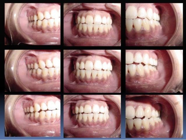Eje facial ( EF )  Es la principal cresta desarrollada en la mitad de las superficies vestibulares de los incisivos, cani...