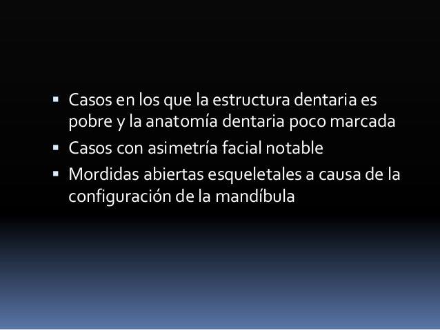 Centro vertical de la corona  Molares: Nace en la cúspide mesiovestibular a la mitad de la corona  Premolares: A la altu...