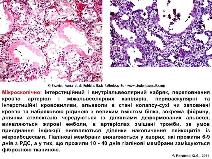 Мікроскопічно:  інтерстиційний і внутріальвеолярний набряк, переповнення кров ' ю артеріол і міжальвеолярних капілярів, пе...