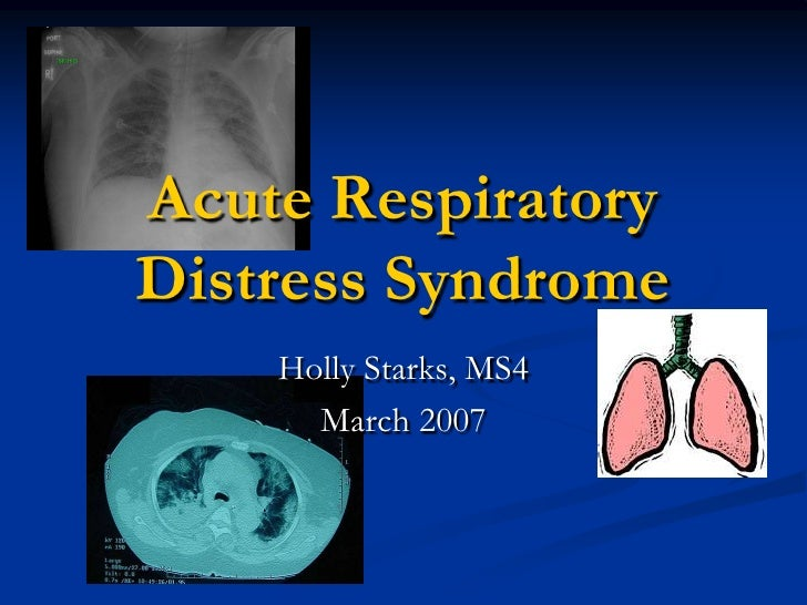 Acute Respiratory Distress Syndrome     Holly Starks, MS4       March 2007