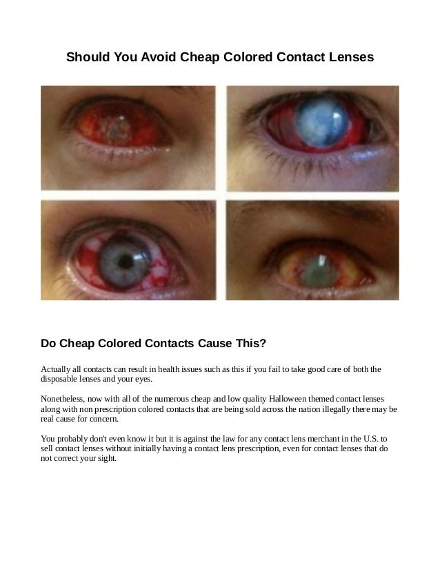 Are Cheap Colored Contacts Dangerous