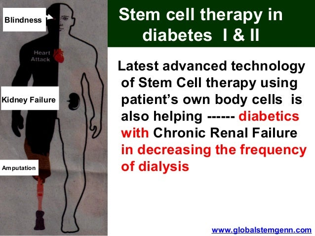 stem cell therapy in diabetes essay Stem cell therapy is a promising therapeutic modality for advanced diabetes mellitus (dm) this study presents a meta-analysis of relevant clinical trials to determine the efficacy of stem cell therapy in dm we aim to critically evaluate and synthesize clinical evidence on the safety and efficiency .