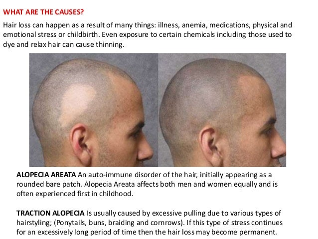 The Underlying Root Cause(s) of Your Hair Loss - photo#29