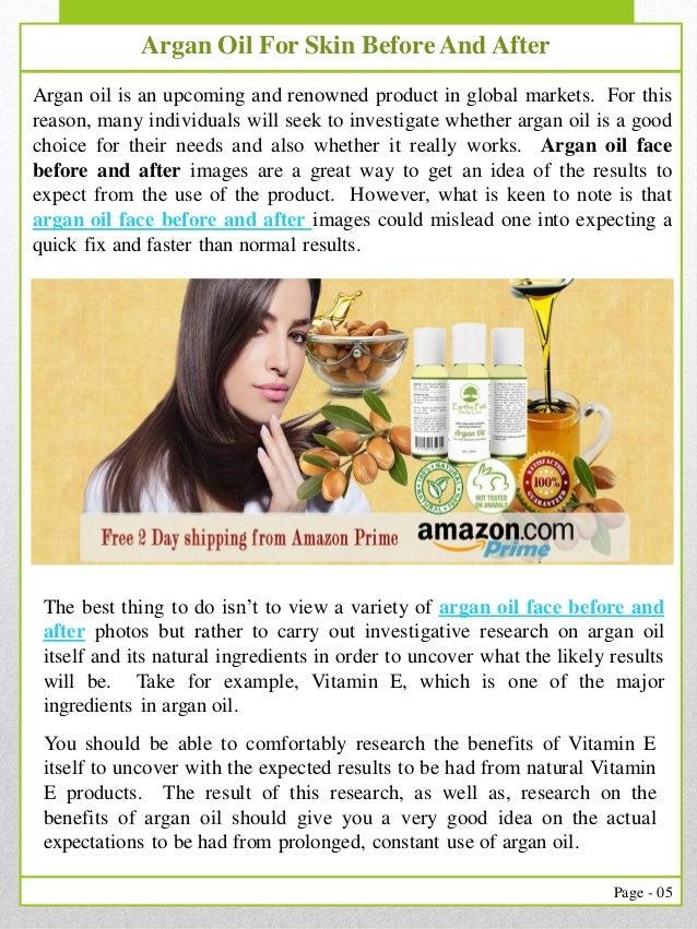 Argan Oil Diabetes 2019 • Basic of Diabetes