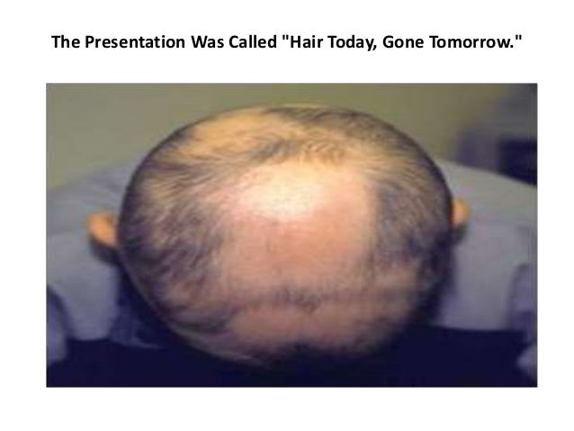 "The Presentation Was Called ""Hair Today, Gone Tomorrow."""