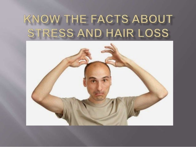Natural hair loss treatment for men