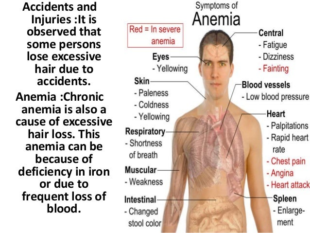 Accidents and Injuries :It is observed that some persons lose excessive hair due to accidents. Anemia :Chronic anemia is a...