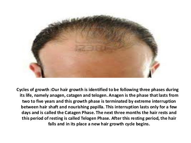 Cycles of growth :Our hair growth is identified to be following three phases during its life, namely anagen, catagen and t...