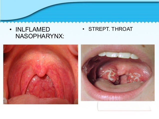 Croup Throat 7