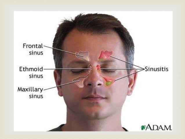   Clinical features  Sneezing  Nasal discharge  Facial pressure  Fever  Purulent drainage  Headache  Sinus imagin...