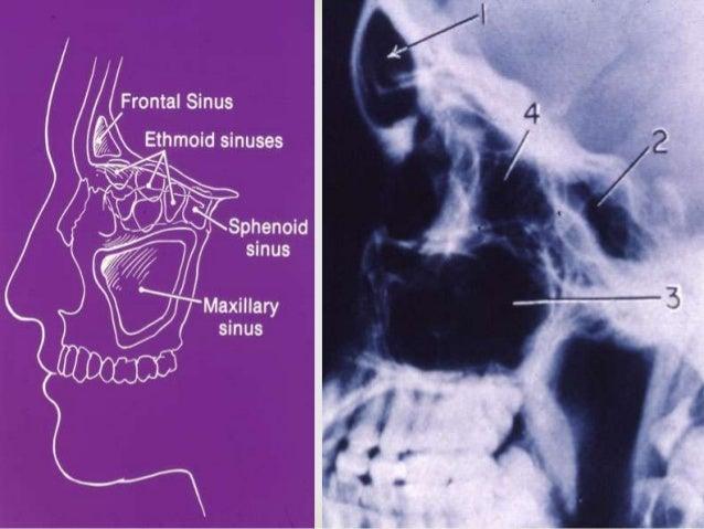  Maxillary: usually uncomplicated Ethmoid: cavernous sinus thrombosis-serious Frontal: osteomyelitis of frontal bone; ...