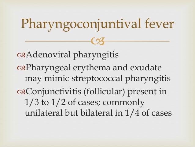   Vincent's angina: anaerobic pharyngitis (exudate; foul odor to breath)  Ludwig's angina- cellulitis of dental origin ...