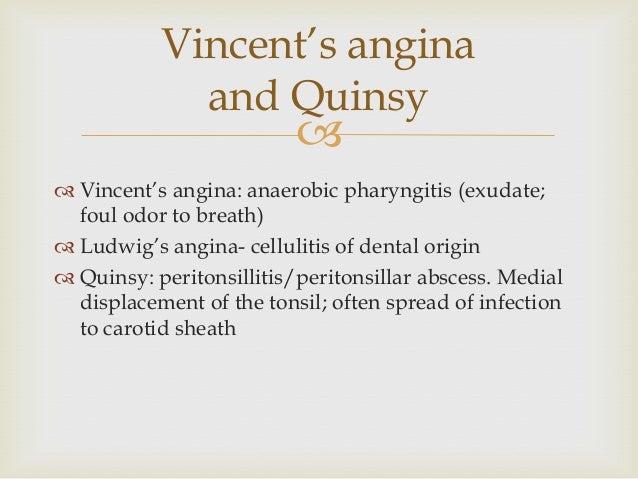 Vincents Angina acute respirato...