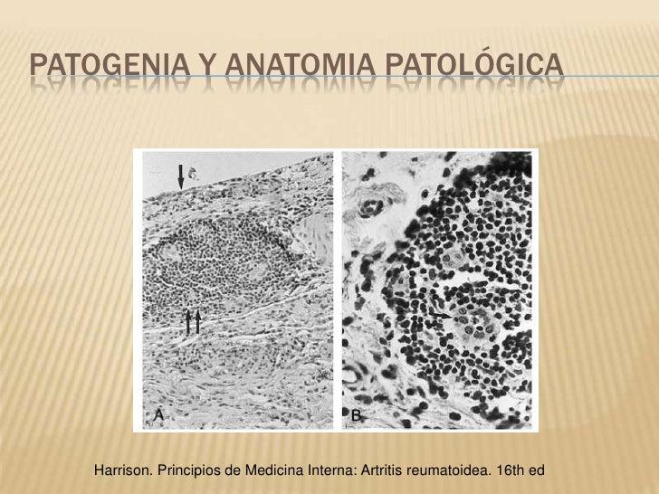 Excelente Anatomía De La Artritis Fotos - Anatomía de Las ...