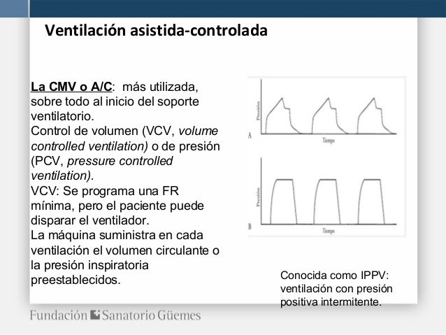 Arm modos - Ventilacion mecanica controlada ...