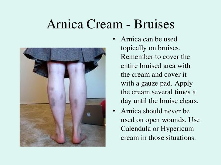 Arnica montana - Bruises, Trauma, Sprains, Falls Slide 2
