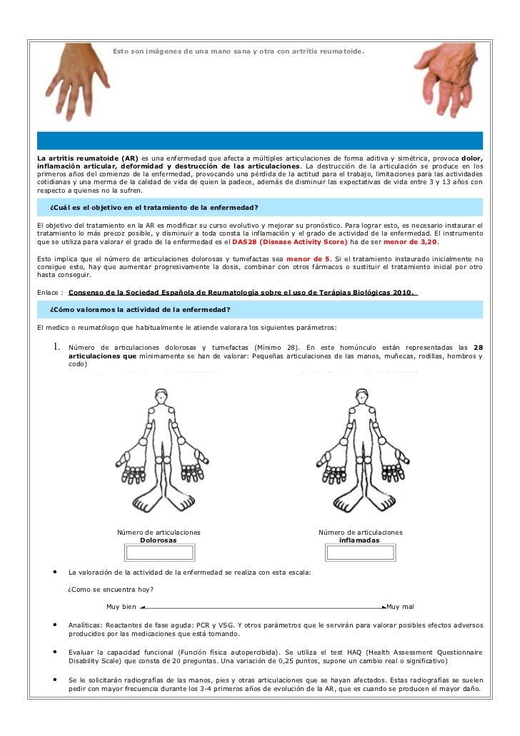 Esto son imágenes de una mano sana y otra con artritis reumatoide.La artritis reumatoide (AR) es una enfermedad que afecta...