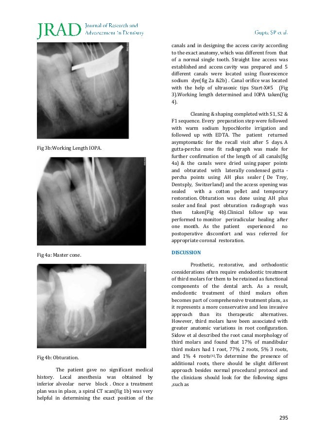 Endodontic Management of a Mandibular Third Molar with Three Roots-Fi…
