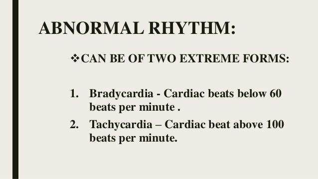 Arrhythmia HEART