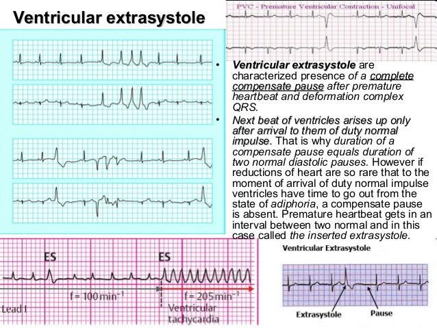 Extrasystole Explication Essay - image 11