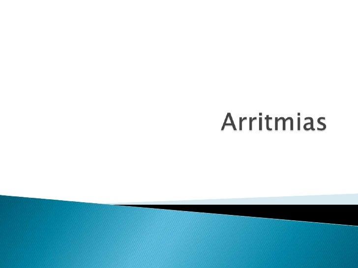 Arritmias<br />