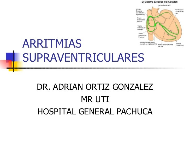 ARRITMIAS SUPRAVENTRICULARES DR. ADRIAN ORTIZ GONZALEZ MR UTI HOSPITAL GENERAL PACHUCA