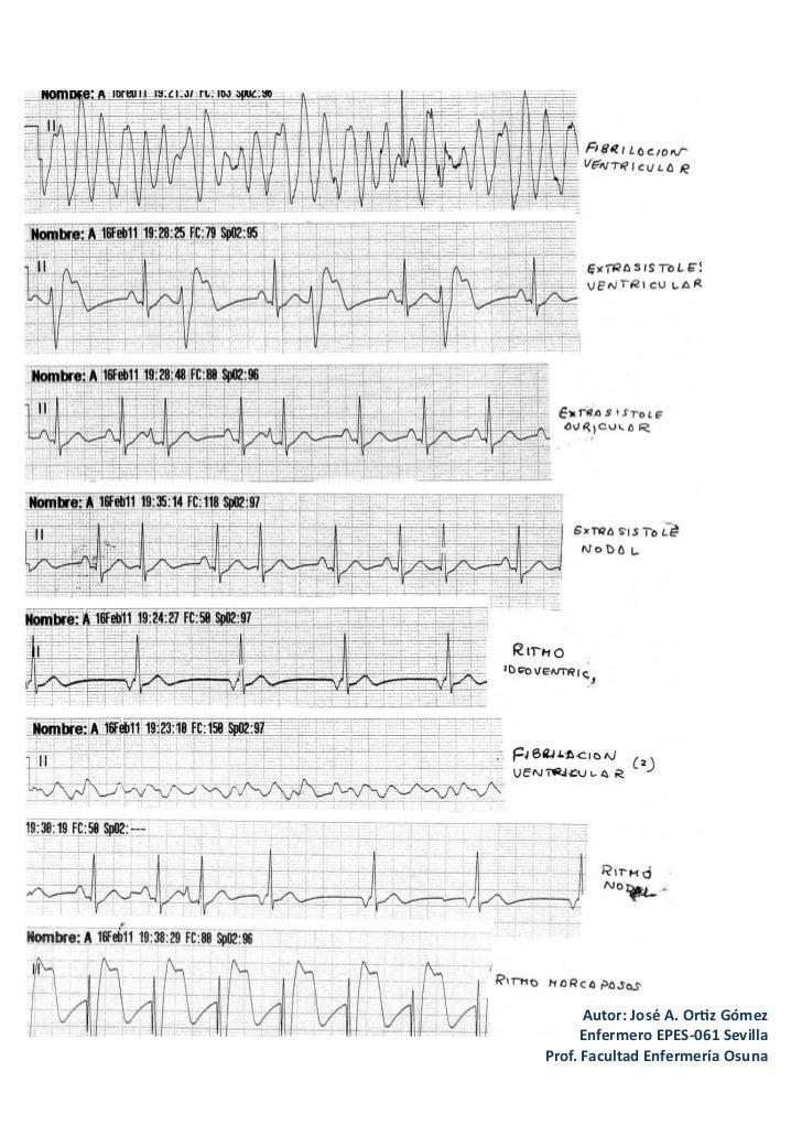 Arritmias cardiacas RCP