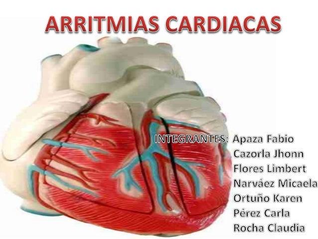 Arritmias cardiacas