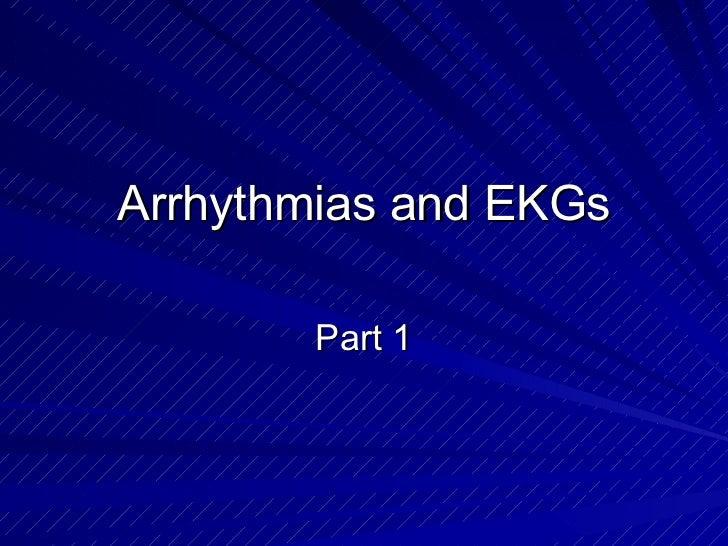 Arrhythmias and EKGs Part 1