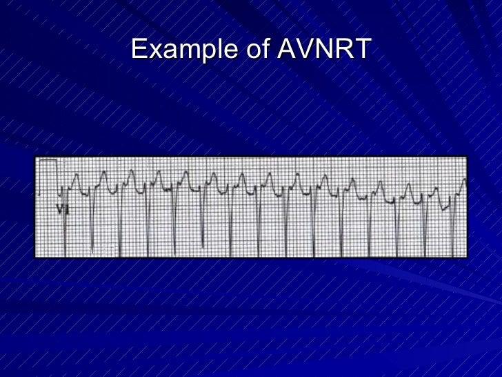 Example of AVNRT