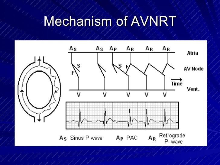 Mechanism of AVNRT