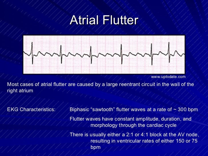 Atrial Flutter Most cases of atrial flutter are caused by a large reentrant circuit in the wall of the right atrium EKG Ch...