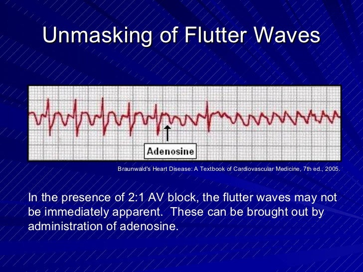 Unmasking of Flutter Waves In the presence of 2:1 AV block, the flutter waves may not be immediately apparent.  These can ...