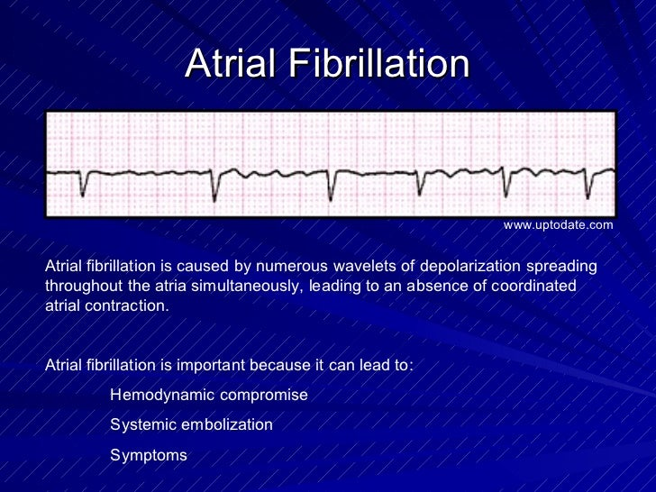 Atrial Fibrillation Atrial fibrillation is caused by numerous wavelets of depolarization spreading throughout the atria si...