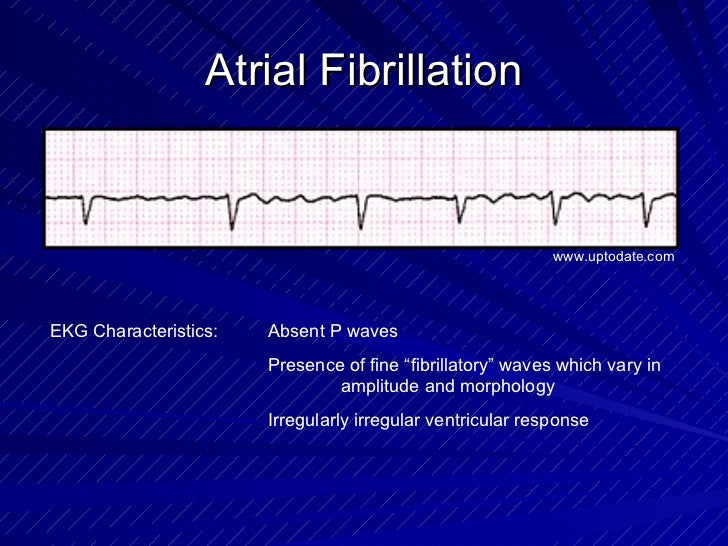 """Atrial Fibrillation EKG Characteristics: Absent P waves Presence of fine """"fibrillatory"""" waves which vary in  amplitude and..."""