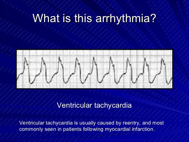 What is this arrhythmia? Ventricular tachycardia Ventricular tachycardia is usually caused by reentry, and most commonly s...