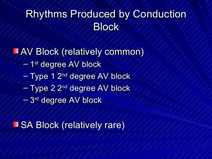 Rhythms Produced by Conduction Block <ul><li>AV Block (relatively common)  </li></ul><ul><ul><li>1 st  degree AV block </l...