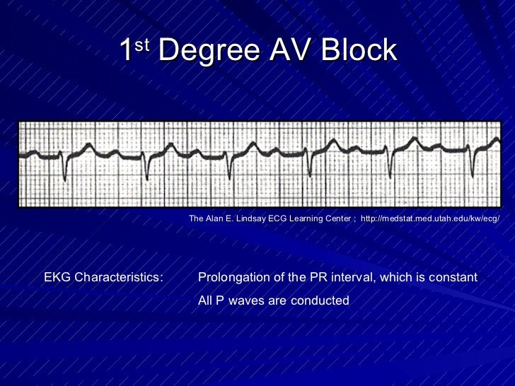 1 st  Degree AV Block EKG Characteristics: Prolongation of the PR interval, which is constant All P waves are conducted Th...