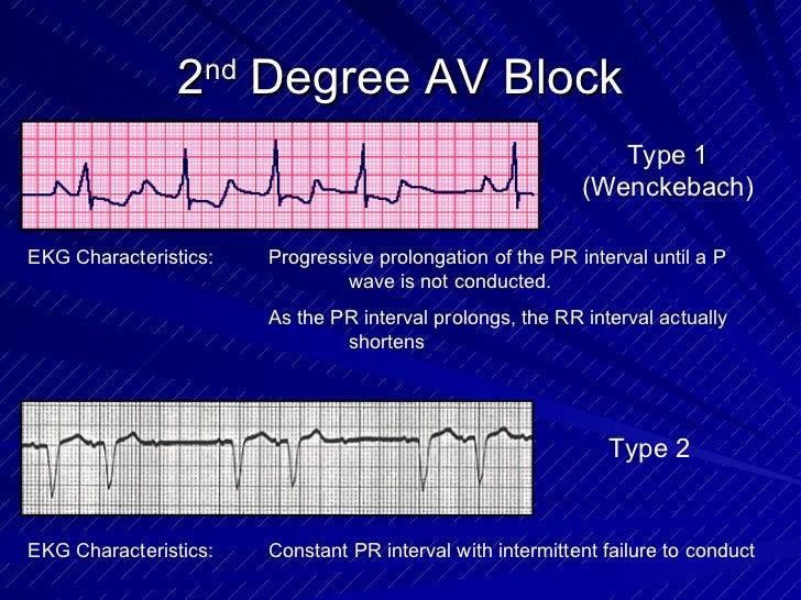 2 nd  Degree AV Block Type 1 (Wenckebach) EKG Characteristics: Progressive prolongation of the PR interval until a P  wave...