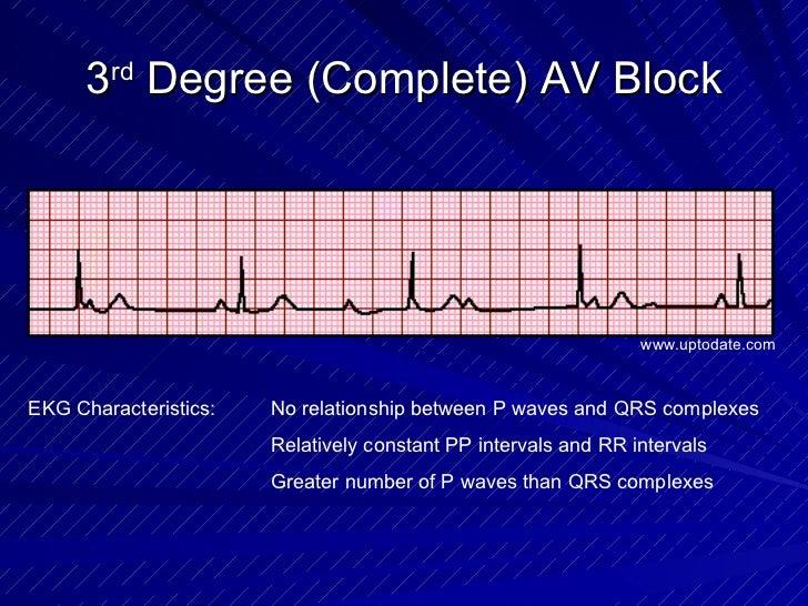 3 rd  Degree (Complete) AV Block EKG Characteristics: No relationship between P waves and QRS complexes Relatively constan...